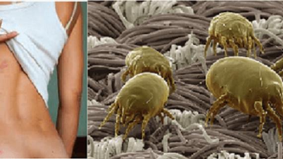 Алергия към домашна прах,помощ с професионално машинно пране за Варна,Добрич